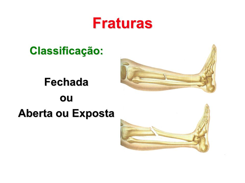 Fraturas Classificação: Fechada ou Aberta ou Exposta