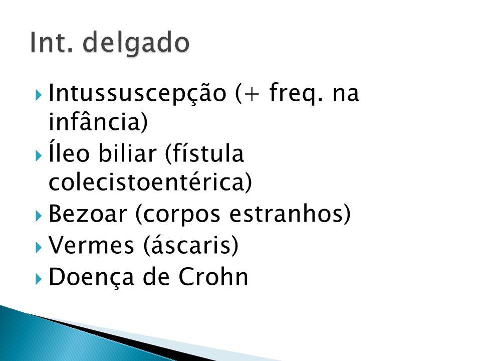 Int. delgado Intussuscepção (+ freq. na infância)