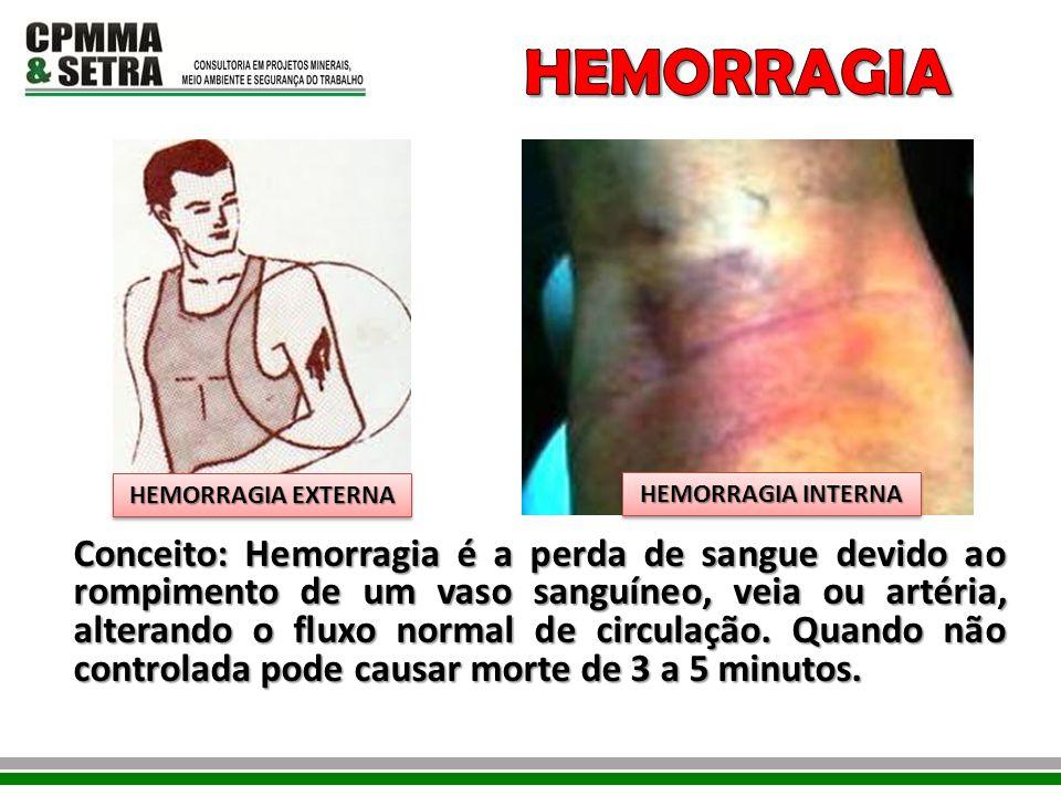HEMORRAGIA HEMORRAGIA EXTERNA. HEMORRAGIA INTERNA.