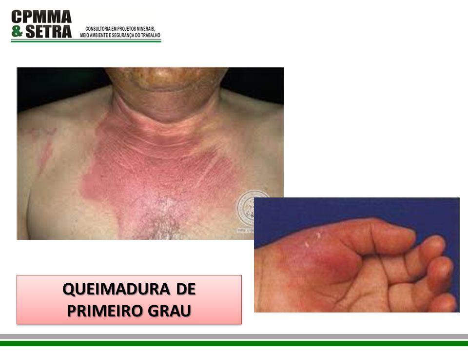 QUEIMADURA DE PRIMEIRO GRAU