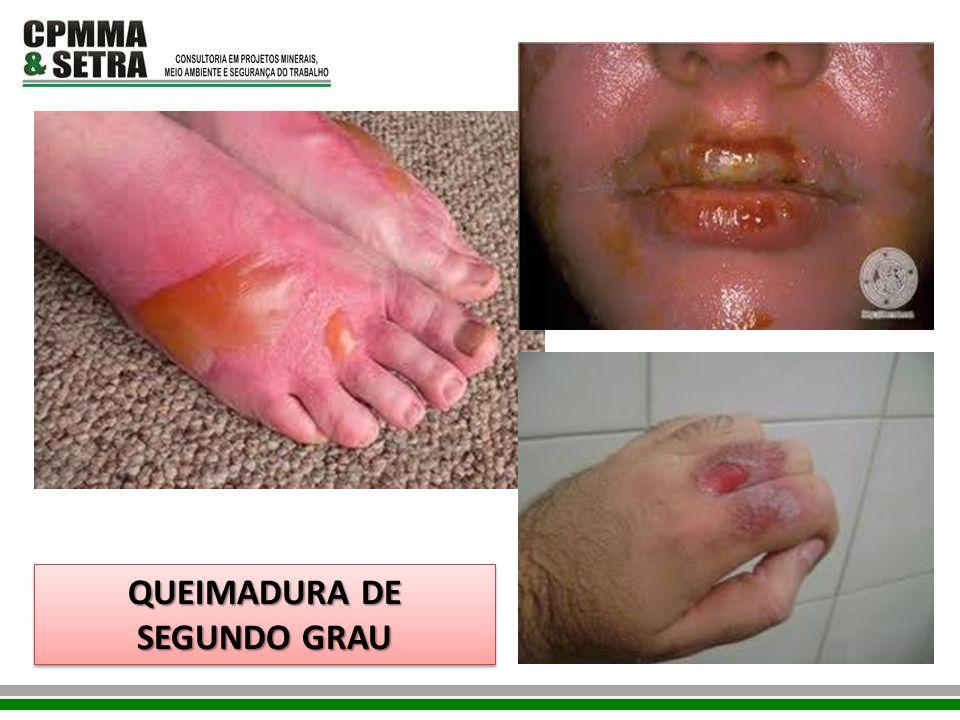 QUEIMADURA DE SEGUNDO GRAU