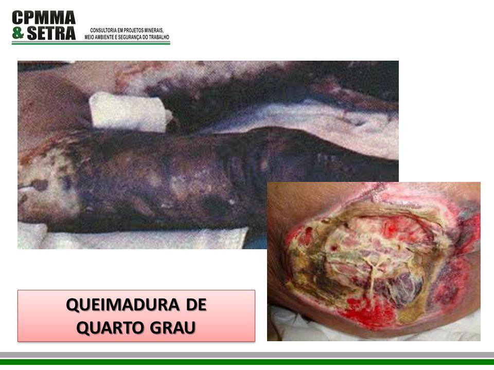 QUEIMADURA DE QUARTO GRAU