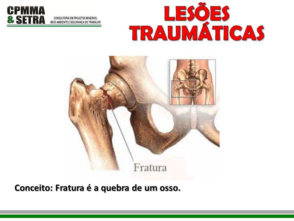 LESÕES TRAUMÁTICAS Conceito: Fratura é a quebra de um osso.