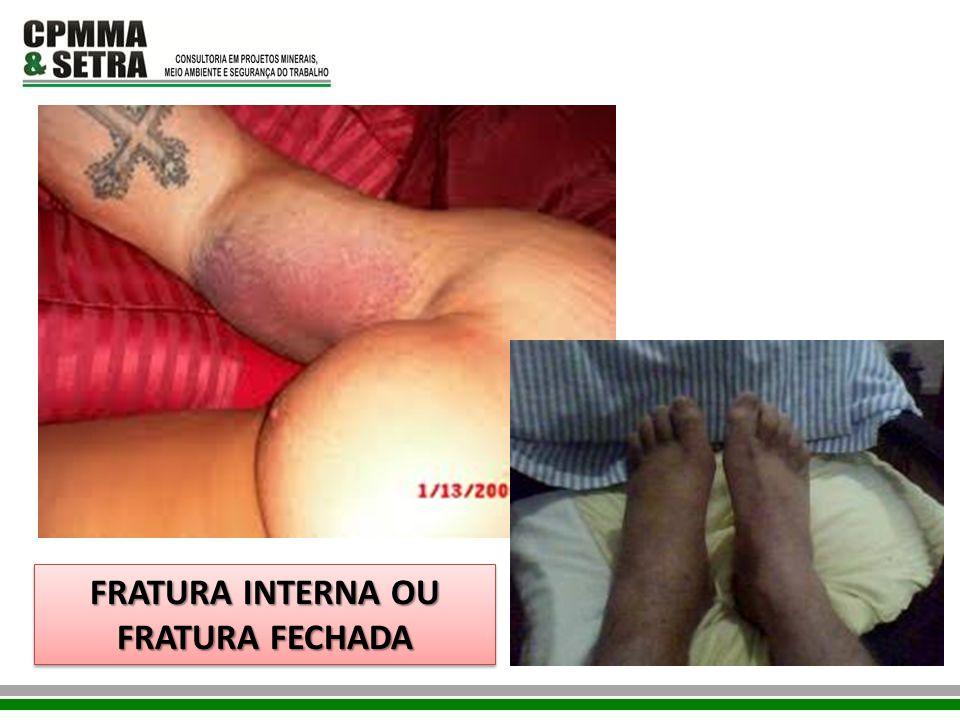 FRATURA INTERNA OU FRATURA FECHADA