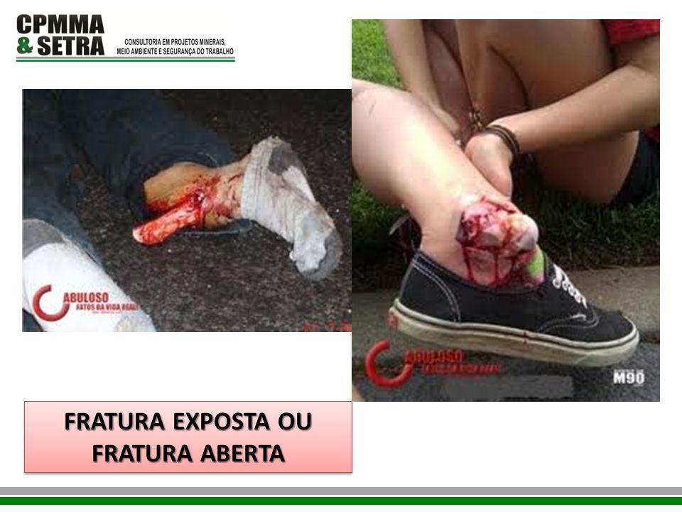 FRATURA EXPOSTA OU FRATURA ABERTA