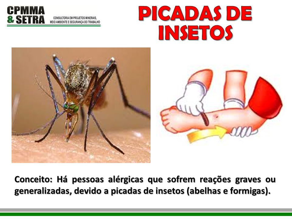 PICADAS DE INSETOS Conceito: Há pessoas alérgicas que sofrem reações graves ou generalizadas, devido a picadas de insetos (abelhas e formigas).