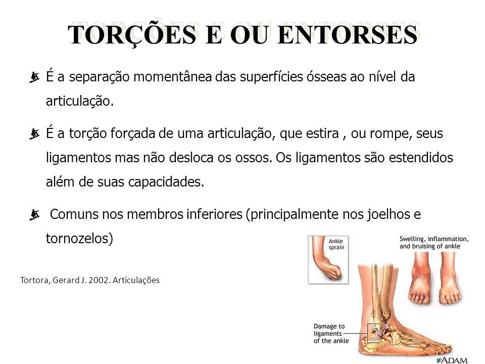 TORÇÕES E OU ENTORSES É a separação momentânea das superfícies ósseas ao nível da articulação.