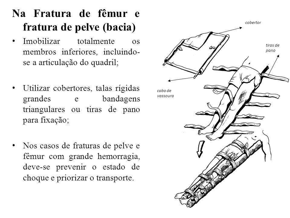 Na Fratura de fêmur e fratura de pelve (bacia)