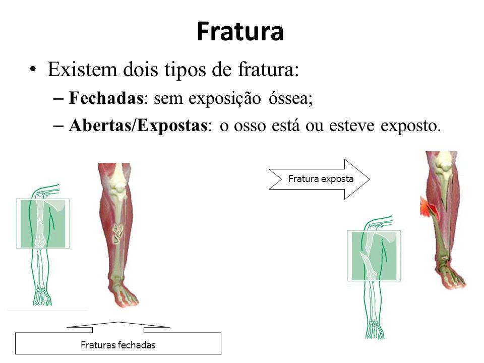 Fratura Existem dois tipos de fratura: Fechadas: sem exposição óssea;