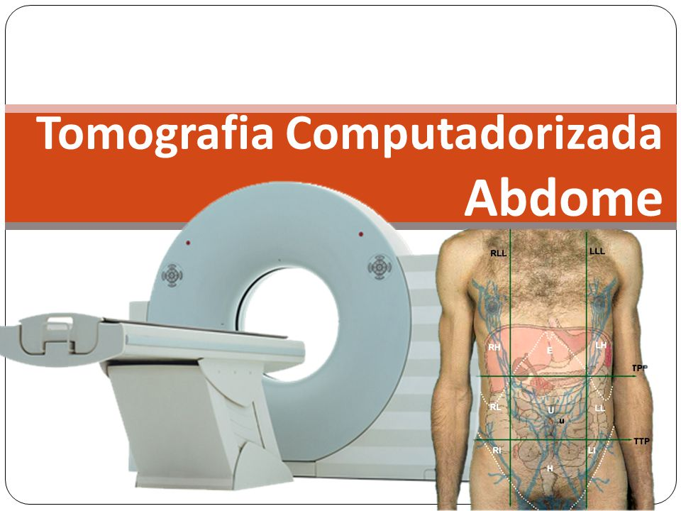 Tomografia Computadorizada Abdome