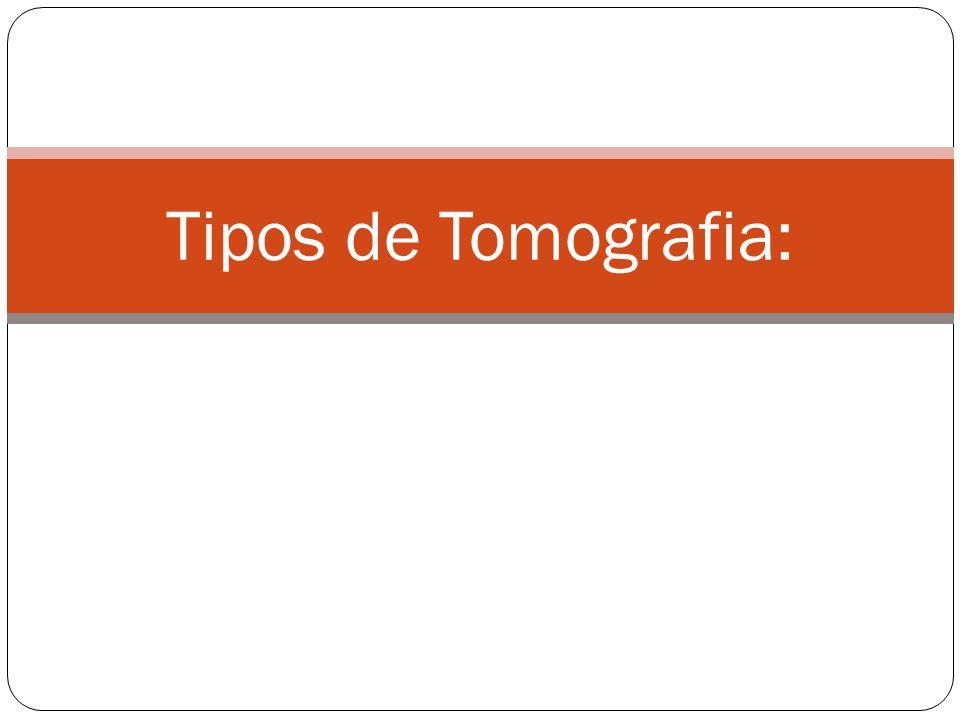 Tipos de Tomografia: