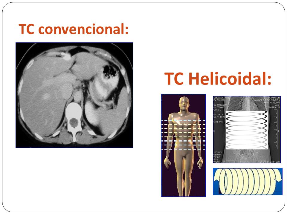 TC convencional: TC Helicoidal: