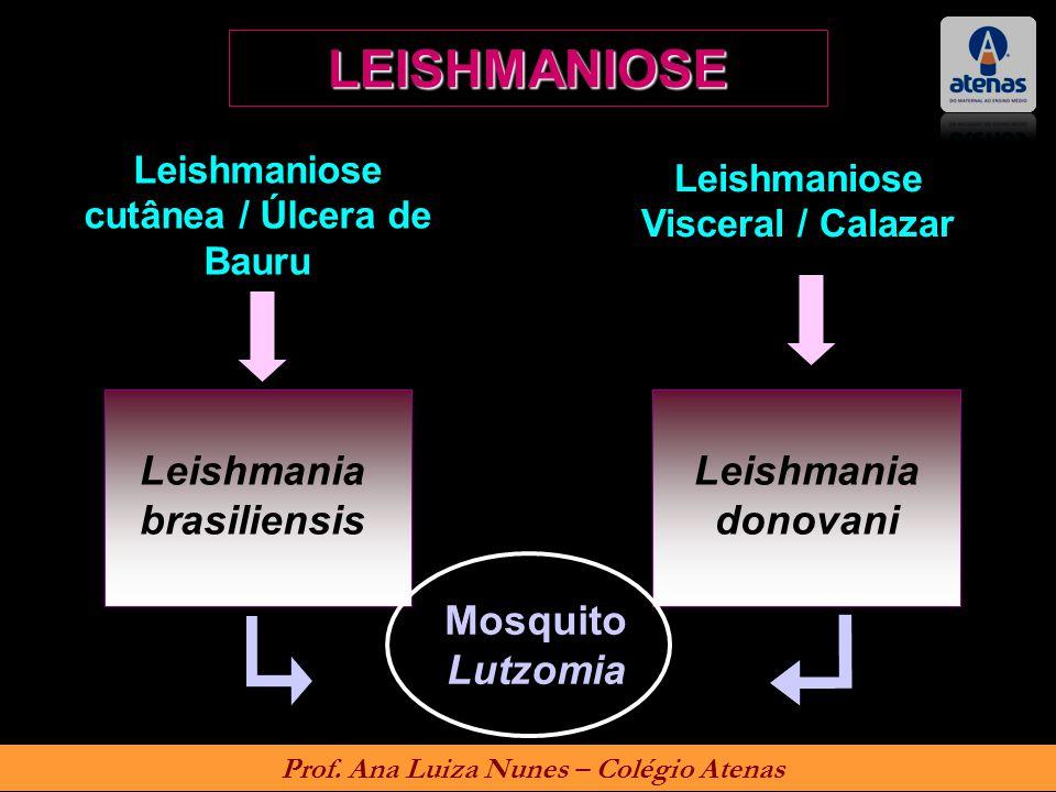 LEISHMANIOSE Leishmania brasiliensis Leishmania donovani