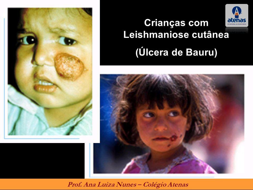 Crianças com Leishmaniose cutânea (Úlcera de Bauru)