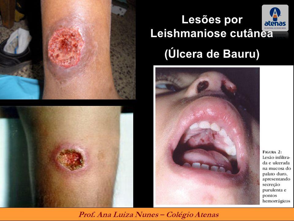 Lesões por Leishmaniose cutânea Prof. Ana Luiza Nunes – Colégio Atenas