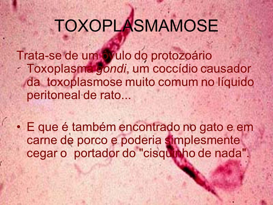 TOXOPLASMAMOSE