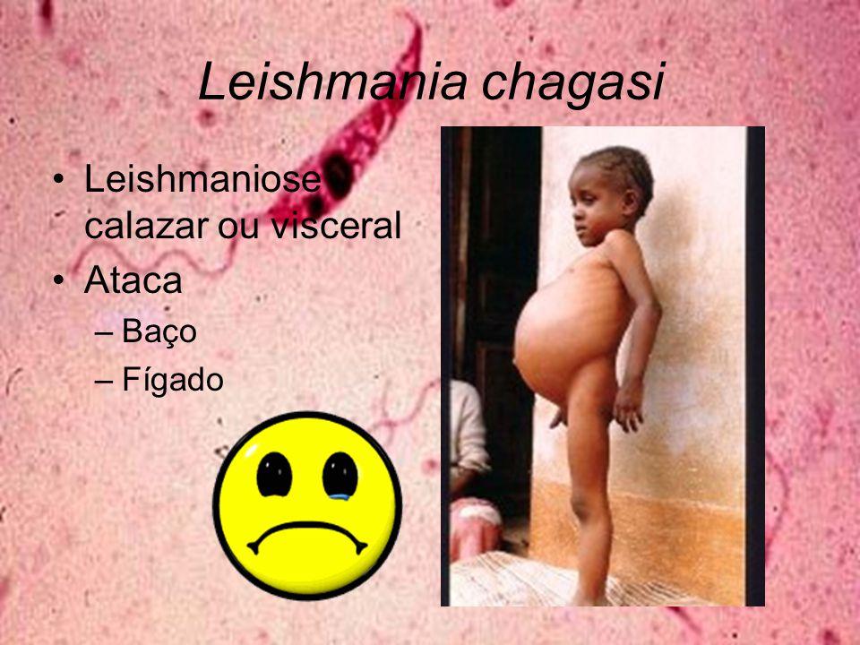 Leishmania chagasi Leishmaniose calazar ou visceral Ataca Baço Fígado