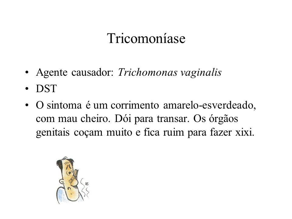 Tricomoníase Agente causador: Trichomonas vaginalis DST