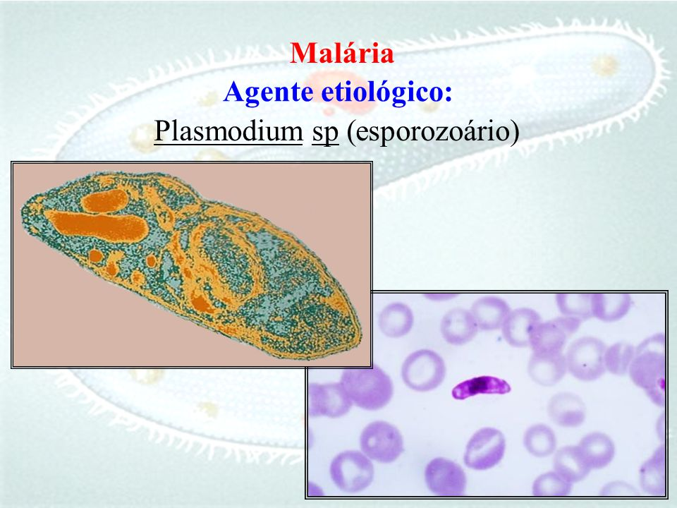 Malária Agente etiológico: Plasmodium sp ( esporozoário)