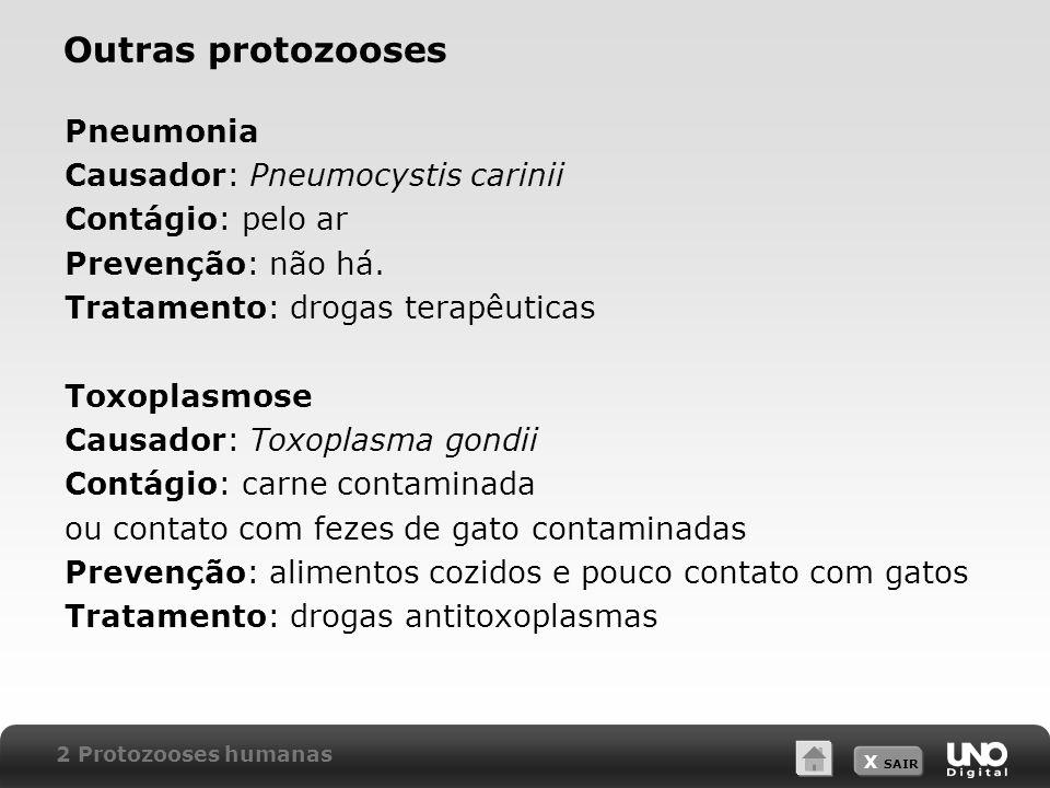 Outras protozooses Pneumonia Causador: Pneumocystis carinii
