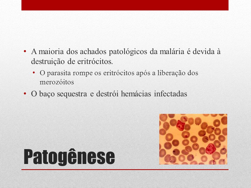 A maioria dos achados patológicos da malária é devida à destruição de eritrócitos.