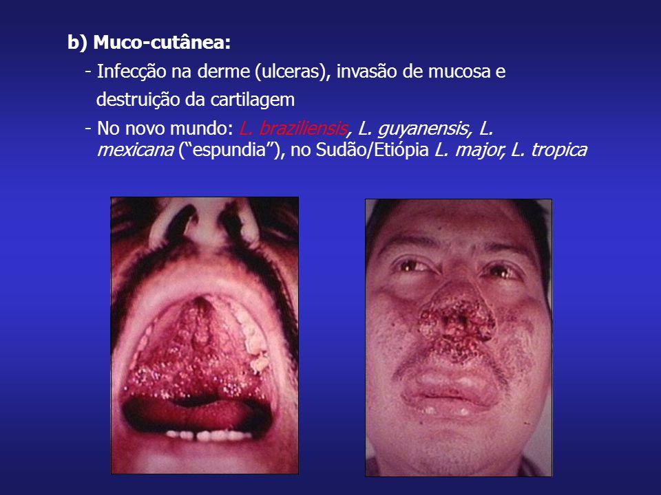 b) Muco-cutânea: - Infecção na derme (ulceras), invasão de mucosa e. destruição da cartilagem. - No novo mundo: L. braziliensis, L. guyanensis, L.