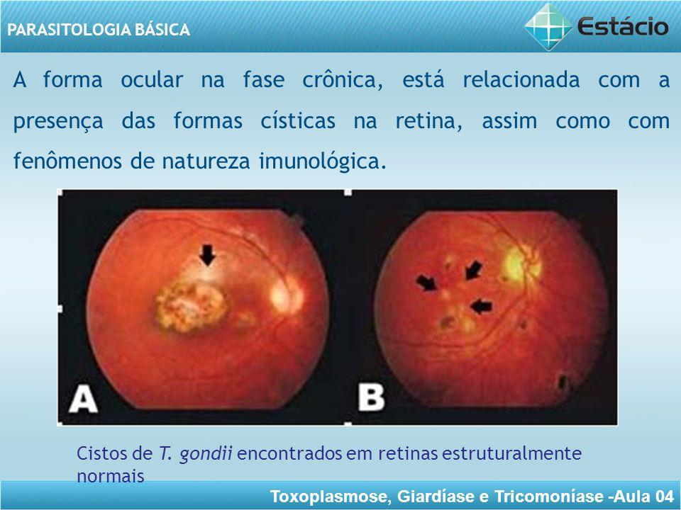 A forma ocular na fase crônica, está relacionada com a presença das formas císticas na retina, assim como com fenômenos de natureza imunológica.