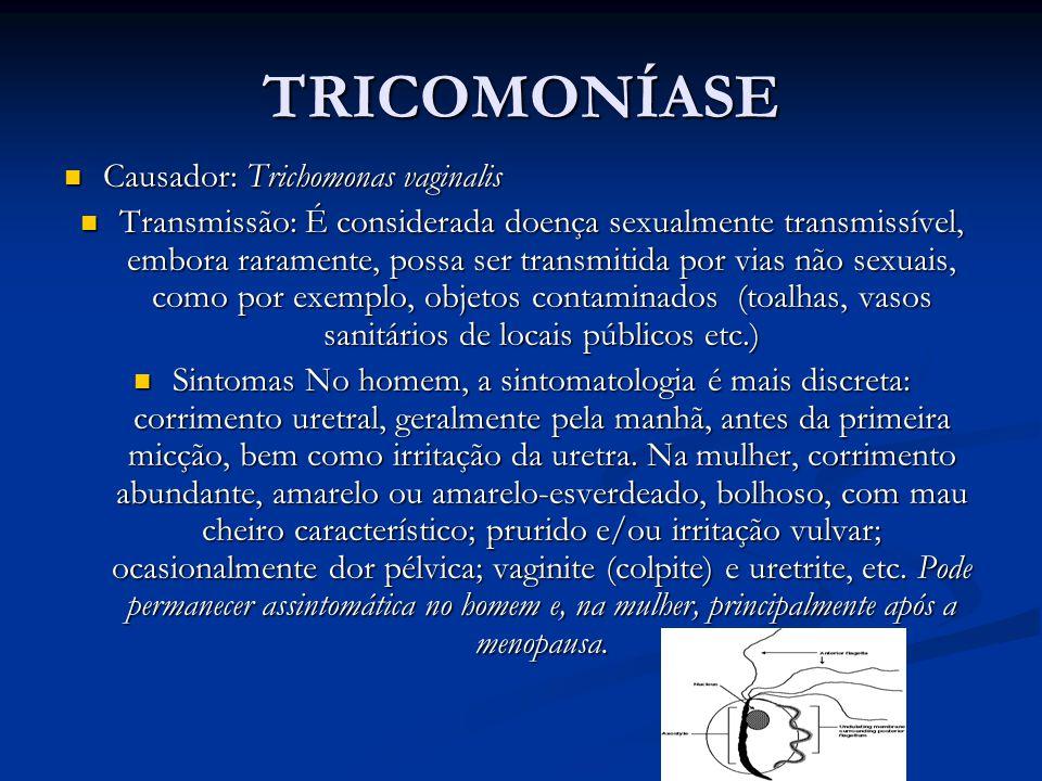 TRICOMONÍASE Causador: Trichomonas vaginalis
