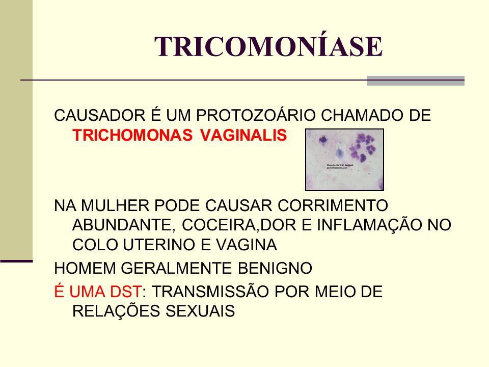 TRICOMONÍASE CAUSADOR É UM PROTOZOÁRIO CHAMADO DE TRICHOMONAS VAGINALIS.