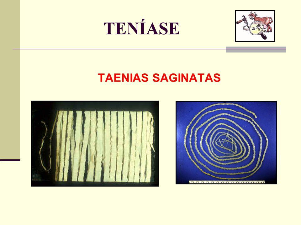 TENÍASE TAENIAS SAGINATAS