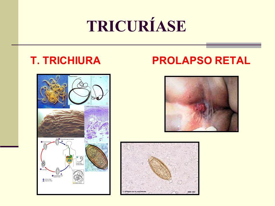TRICURÍASE T. TRICHIURA PROLAPSO RETAL