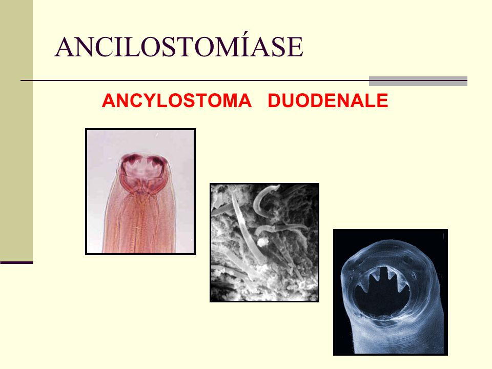 ANCILOSTOMÍASE ANCYLOSTOMA DUODENALE