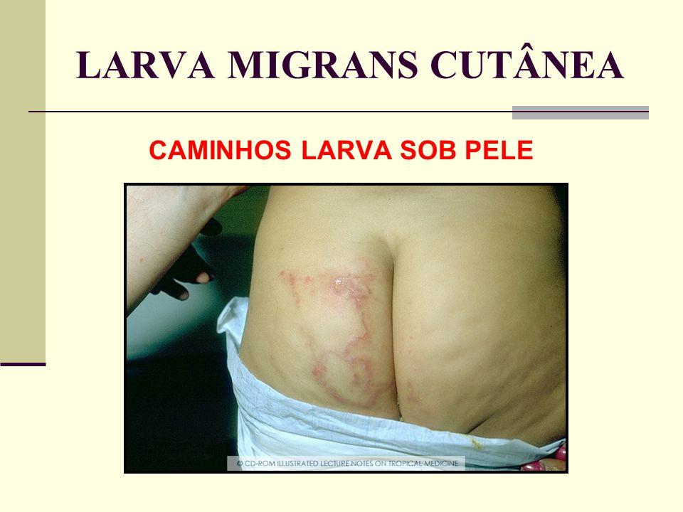 LARVA MIGRANS CUTÂNEA CAMINHOS LARVA SOB PELE