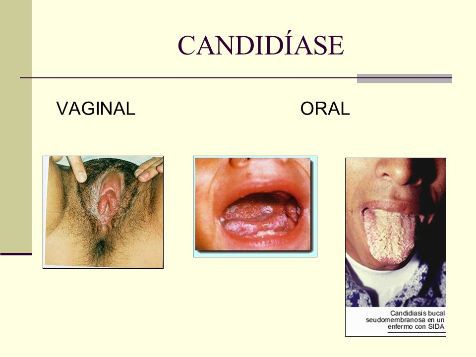 CANDIDÍASE VAGINAL ORAL