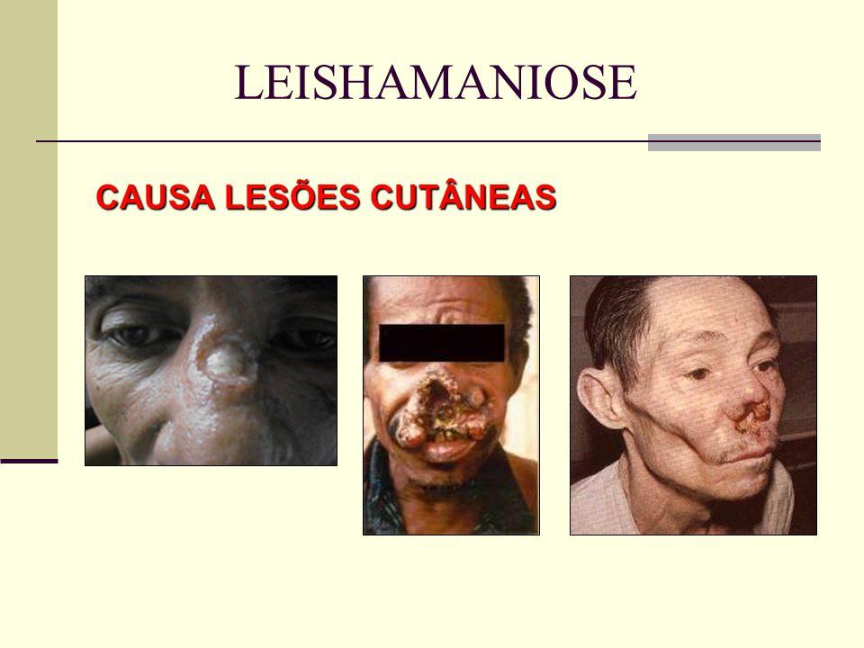 LEISHAMANIOSE CAUSA LESÕES CUTÂNEAS