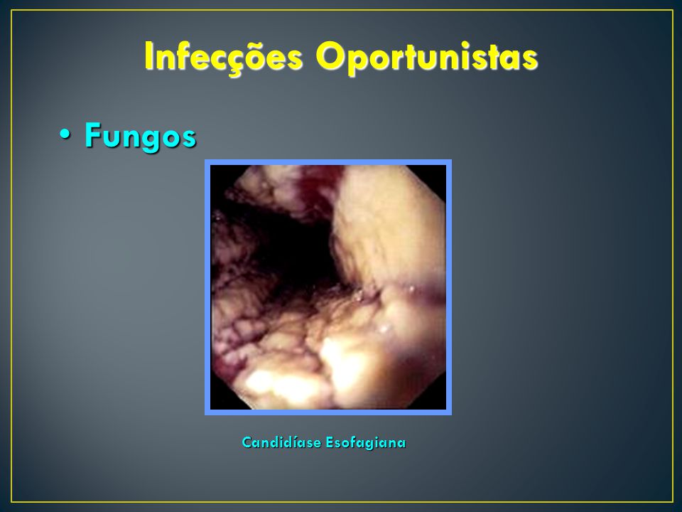 Infecções Oportunistas Candidíase Esofagiana