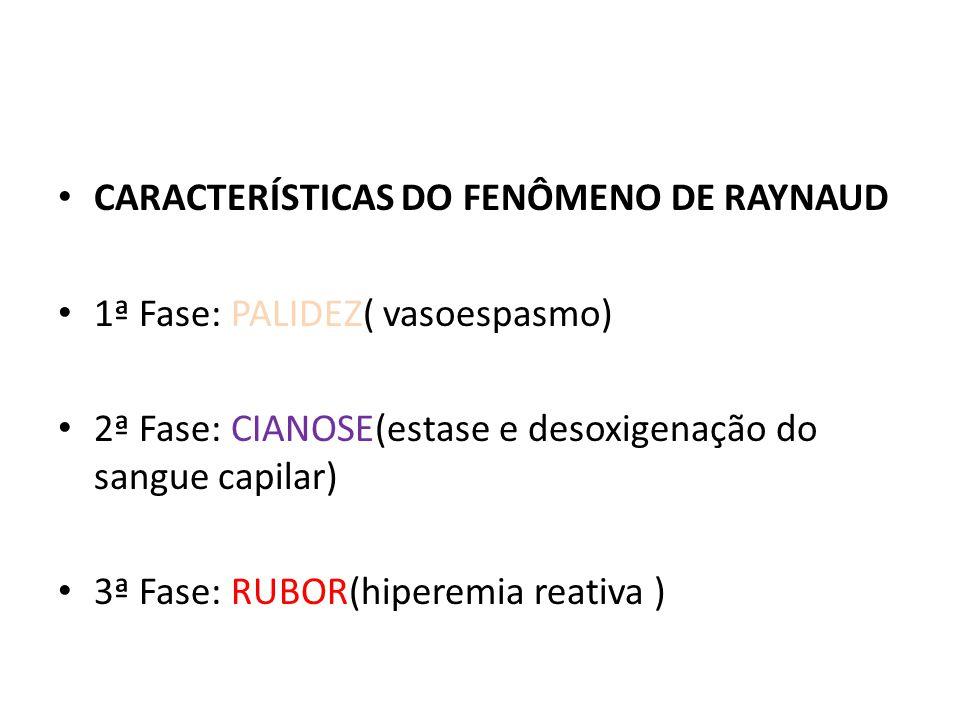 CARACTERÍSTICAS DO FENÔMENO DE RAYNAUD