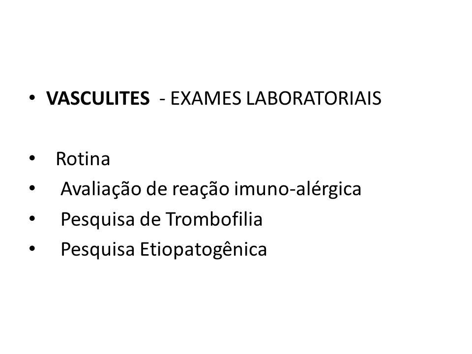 VASCULITES - EXAMES LABORATORIAIS