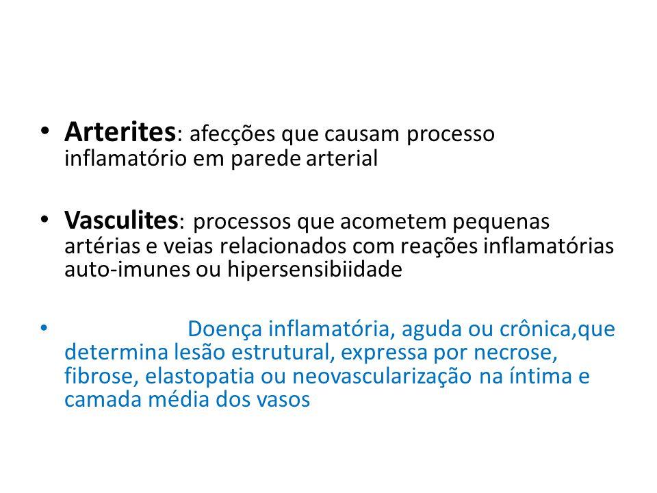 Arterites: afecções que causam processo inflamatório em parede arterial