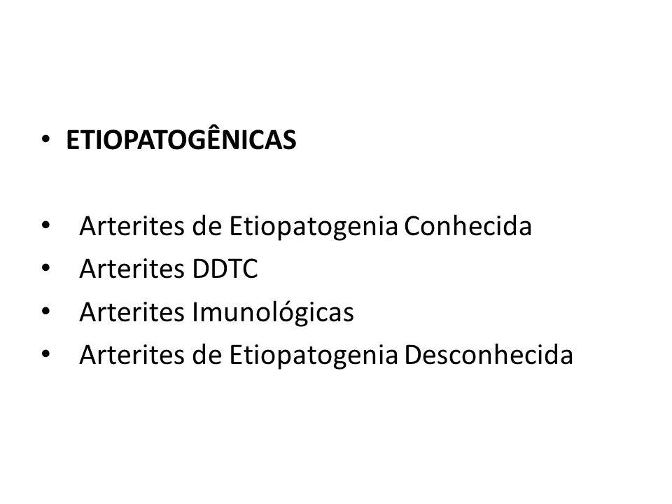 ETIOPATOGÊNICAS Arterites de Etiopatogenia Conhecida.