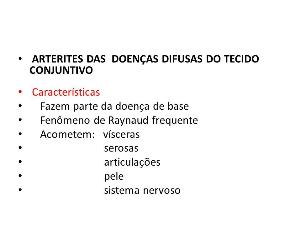 ARTERITES DAS DOENÇAS DIFUSAS DO TECIDO CONJUNTIVO