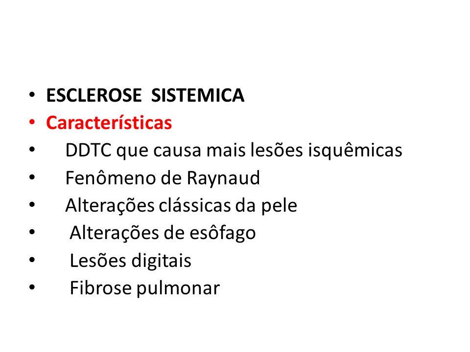ESCLEROSE SISTEMICA Características. DDTC que causa mais lesões isquêmicas. Fenômeno de Raynaud.