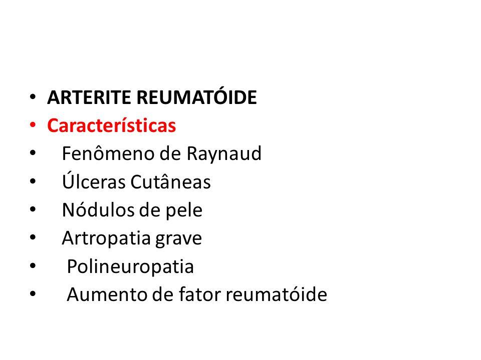 ARTERITE REUMATÓIDE Características. Fenômeno de Raynaud. Úlceras Cutâneas. Nódulos de pele. Artropatia grave.