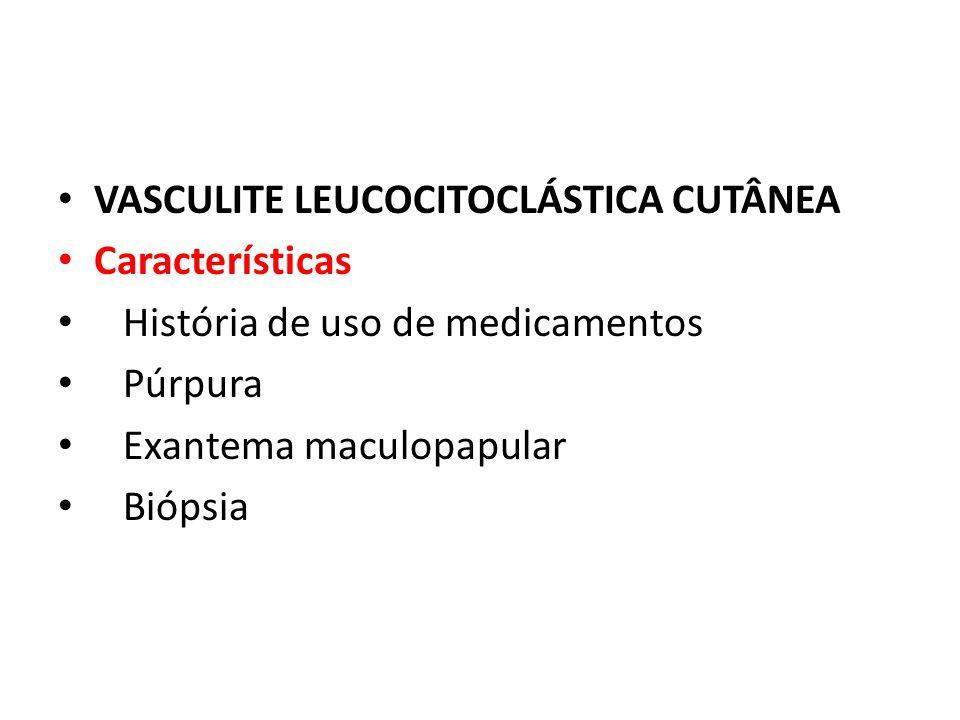 VASCULITE LEUCOCITOCLÁSTICA CUTÂNEA