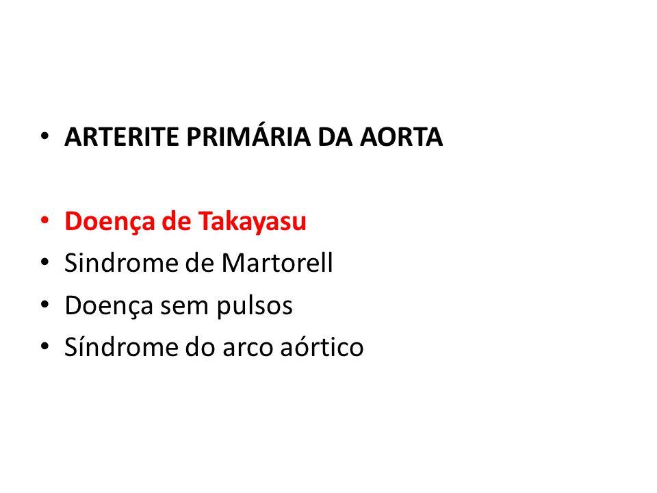 ARTERITE PRIMÁRIA DA AORTA