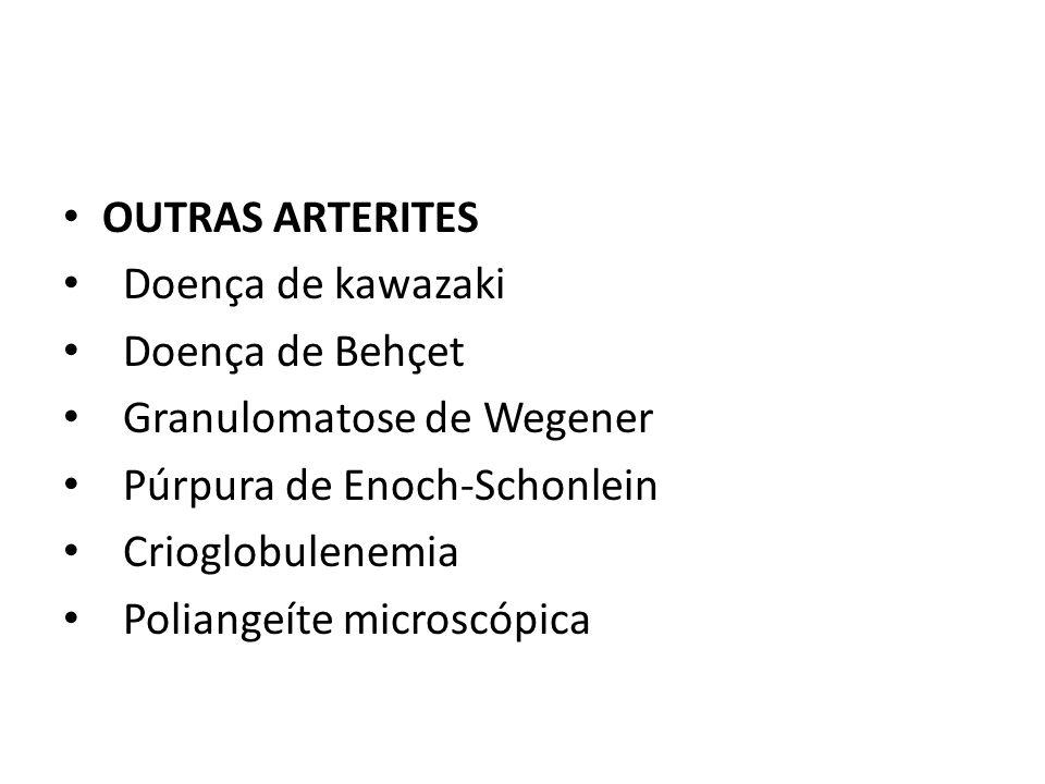 OUTRAS ARTERITES Doença de kawazaki. Doença de Behçet. Granulomatose de Wegener. Púrpura de Enoch-Schonlein.