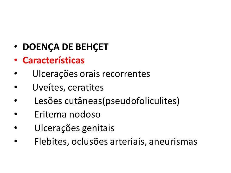DOENÇA DE BEHÇET Características. Ulcerações orais recorrentes. Uveítes, ceratites. Lesões cutâneas(pseudofoliculites)
