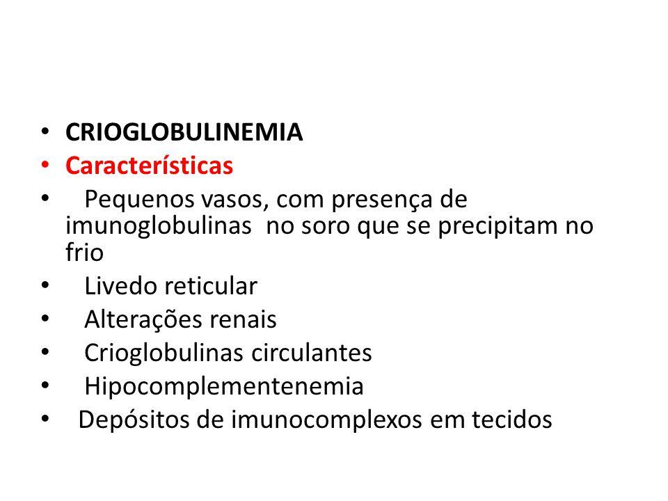 CRIOGLOBULINEMIA Características. Pequenos vasos, com presença de imunoglobulinas no soro que se precipitam no frio.