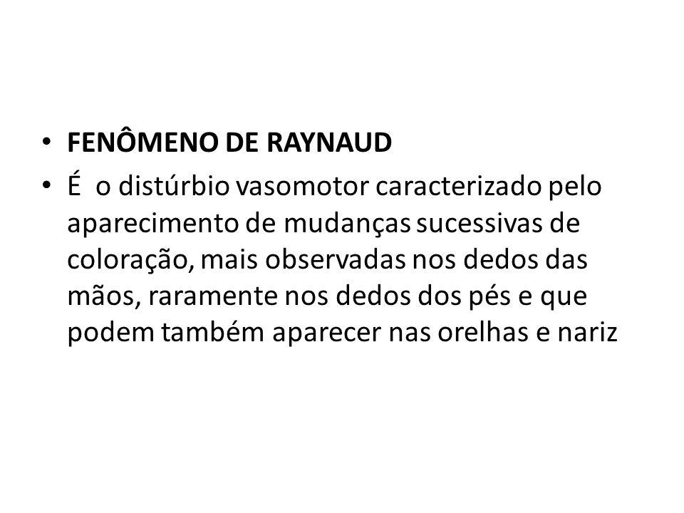 FENÔMENO DE RAYNAUD