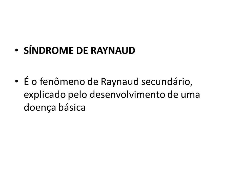 SÍNDROME DE RAYNAUD É o fenômeno de Raynaud secundário, explicado pelo desenvolvimento de uma doença básica.